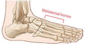 Metatarsals
