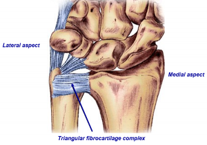 Wrist Pain 1